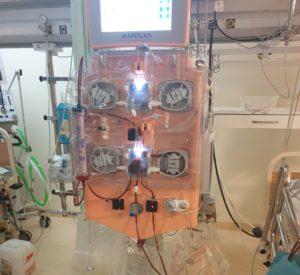 Intensyviosios terapijos gydytojos Editos Poluziorovienės fotografijoje – aparatas, kuriuo ji vienam iš vaikų padarė citratinę (be heparino) hemodiafiltraciją.